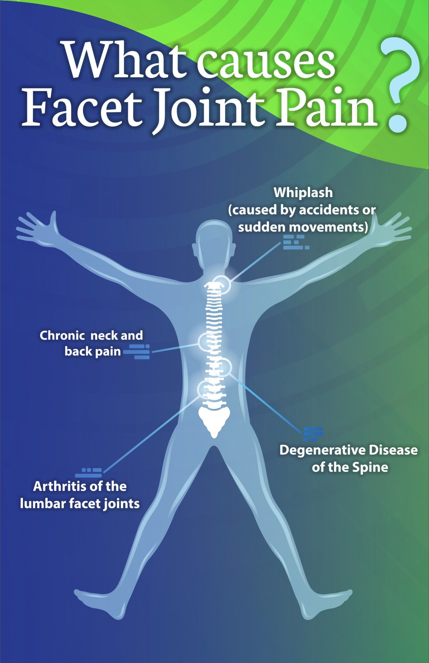 what causes facet joint pain jointpain facetjoint infographic [ 1500 x 2318 Pixel ]