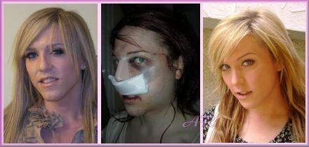 Facial feminization of transsexuals