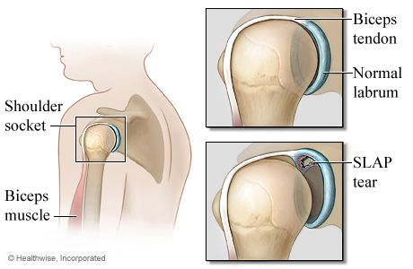 Pin On Shoulder And Labrum Tears Surgery And Recovery