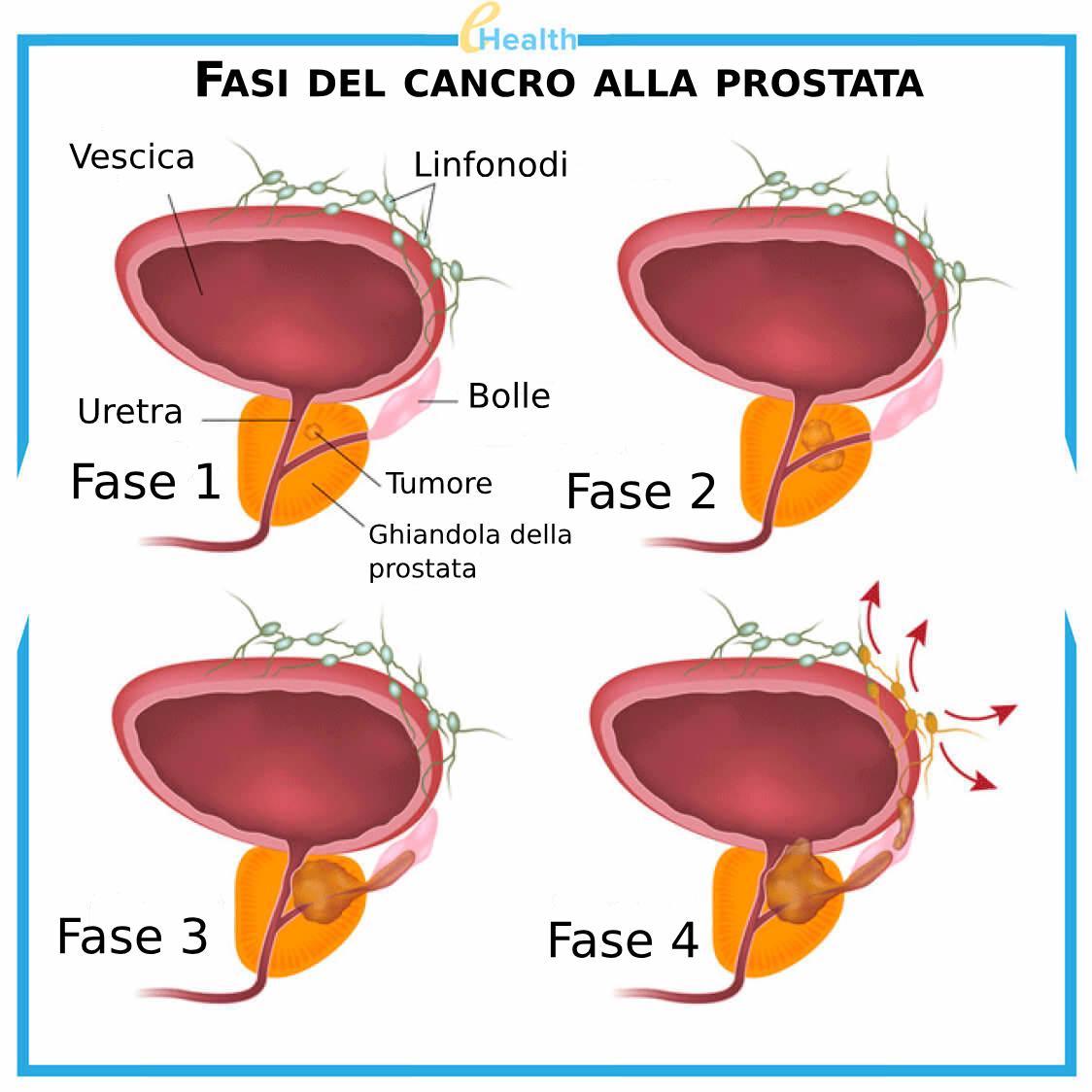 riza cure omeopatiche per tumore vescica e prostata