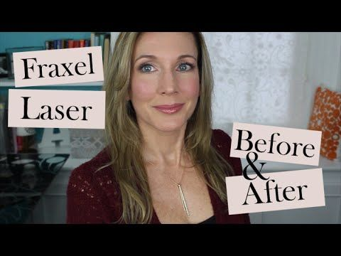 Open Me For Discount Codes More Videos Product Links What I M Wearing Today Click Show More St Anti Aging Skin Products Laser Treatment Aging Skin Care