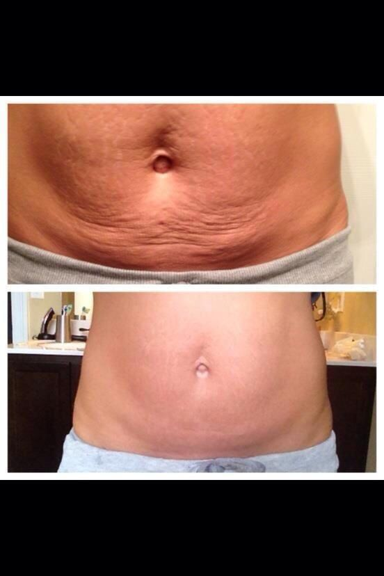 Get Your Wrap On While You Sleep She Had 2 C Sections And This Photo Is Before And After 4 Wraps Amazi It Works Body Wraps Saggy Skin Skin Tightening Stomach
