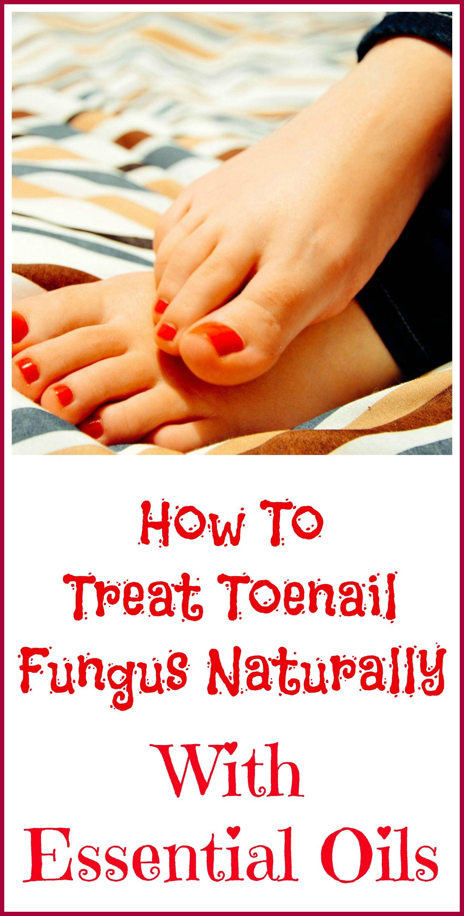 Essential Oils Good For Toenail Fungus | Healing with Essential Oils ...