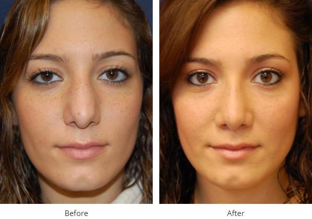 Cosmetic Or Functional Rhinoplasty In San Diego La Jolla Skin Plastic Surgery Rhinoplasty Plastic Surgery Procedures