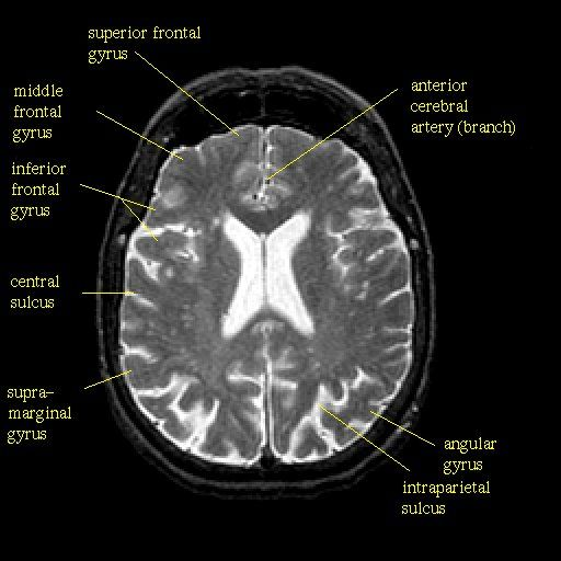 MRI (magnetic resonance imaging) scan of a normal brain. Notice the ...