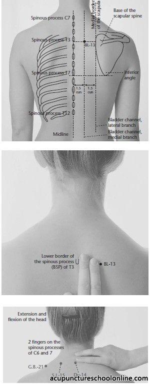 Pin de אורלי עופר en ACADEM Acupuncture | Acupuntura ...