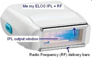 The Me my ELOS Lamp Cartridge! It is an IPL cartridge with two RF delivery bars which send the RF waves to heat the hair until removed. Click Image To Read More Inside..