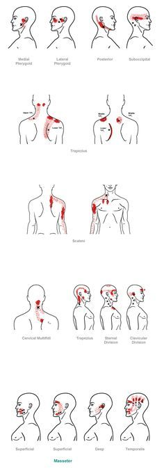 Trigger Point Referral Pain Pattern For The Head Neck Fibro
