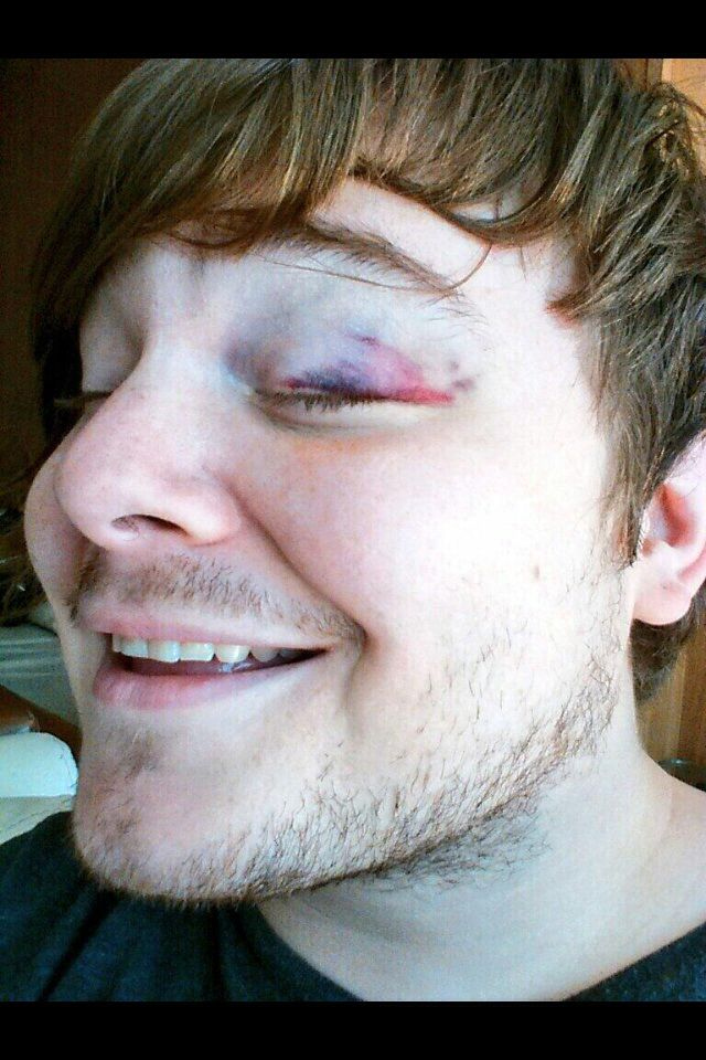 When Aaron Pauley hit himself with his bass, giving him a black eye. Awh