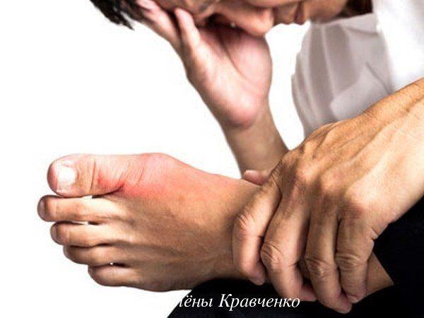 Подагра у мужчин, признаки, причины, симптомы. Лечение ...