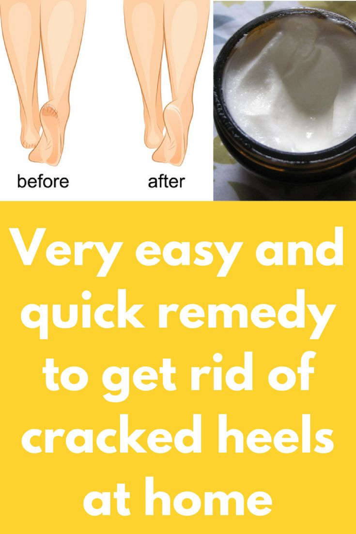 How to make heels soft at home with soda or glycerin 62
