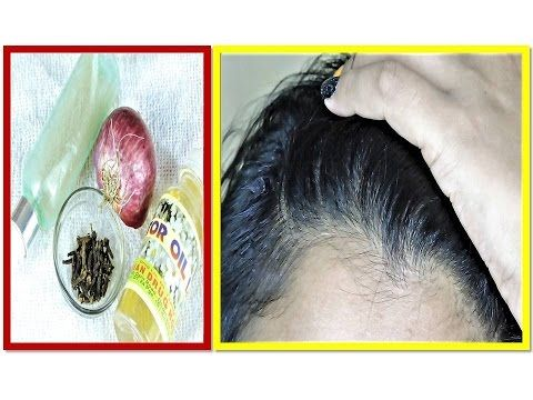 How To Hair Growth Fast With Onion Gharelu Tips In Hindi Youtube Hair Growth Faster Diy Beauty Hacks Beauty Tips In Hindi