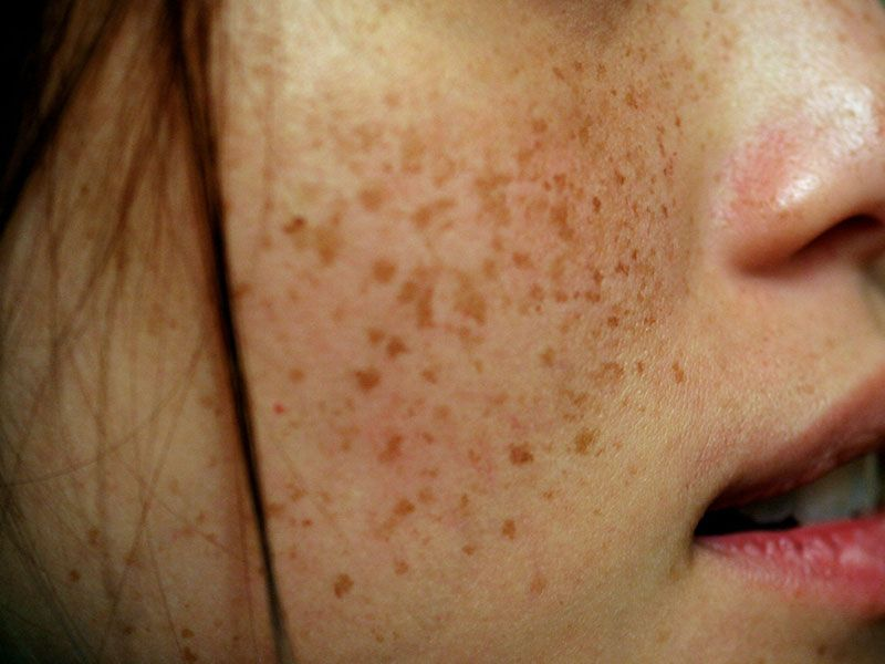 Brown Spots? Freckles? Skin Pigmentation? Whatever You Call Them, With  Every Name