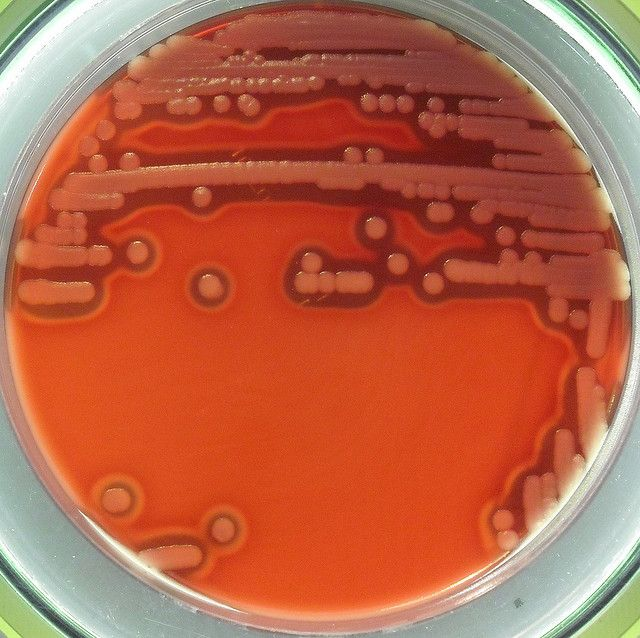microbiology coursework bacillus cereus Adapted from per einar granum in foodborne pathogens: microbiology and  molecular biology bacillus cereus: the bacillus cereus group comprises six.