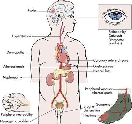 Long-term complications of diabetes mellitus.   nursing ...   432 x 406 jpeg 43kB