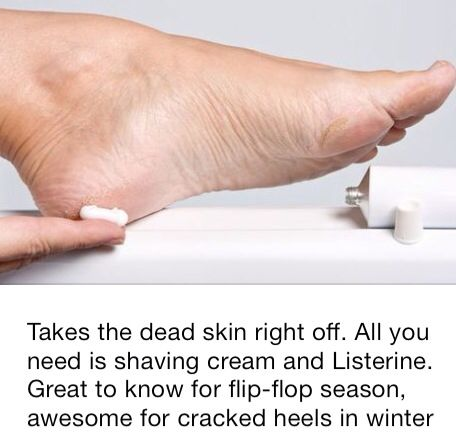5567043a08ddaffdc70c8ec6e256296c - How To Get Dead Skin Off Your Feet Home Remedies