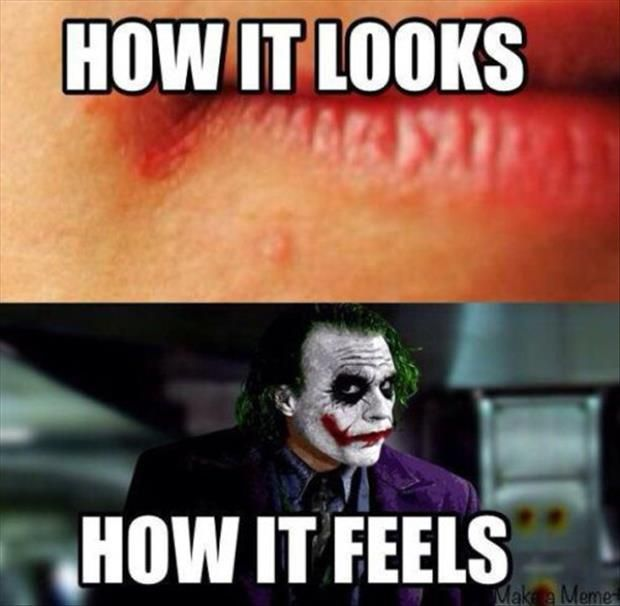 funny chapped lips - Dump A Day   Funny pictures, Funny, Workout memes