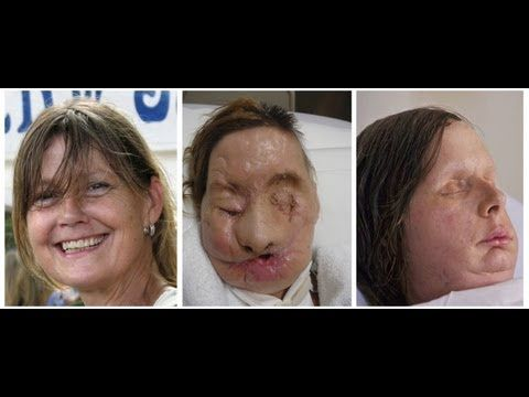 Chimp Attack Victim's New Face (Graphic Photo) - YouTube