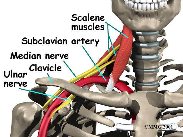 Scalene based Thoracic outlet syndrome is where the arm nerves are ...