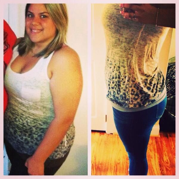How much weight can you lose with a gastric balloon picture 4
