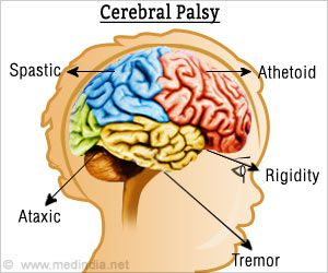 an introduction to the issue of cerebral palsy and its history Cerebral palsy research  the results indicate the need for early introduction of  the natural history of crouch gait in bilateral cerebral.