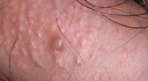 pimple bump på penis