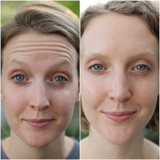 Before After Botox Wrinkle Reduction Pinterest Skin Care