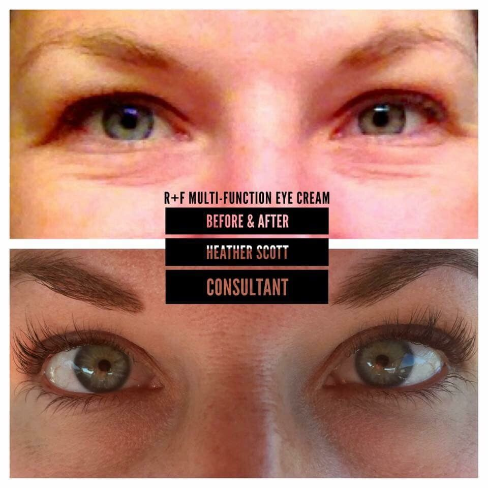 Heather Before After Multi Function Eye Cream Eye Cream Rodan