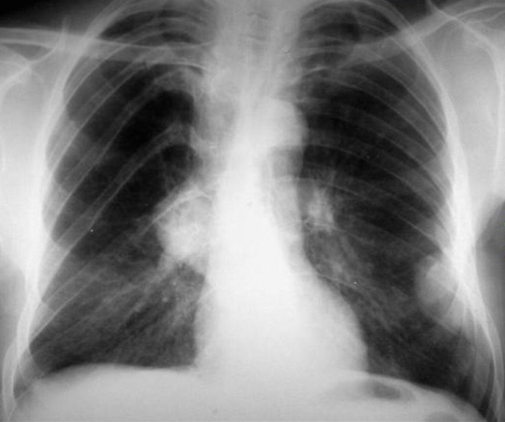 Neurofibromatosis type 1 ribbon ribs Radiology Case