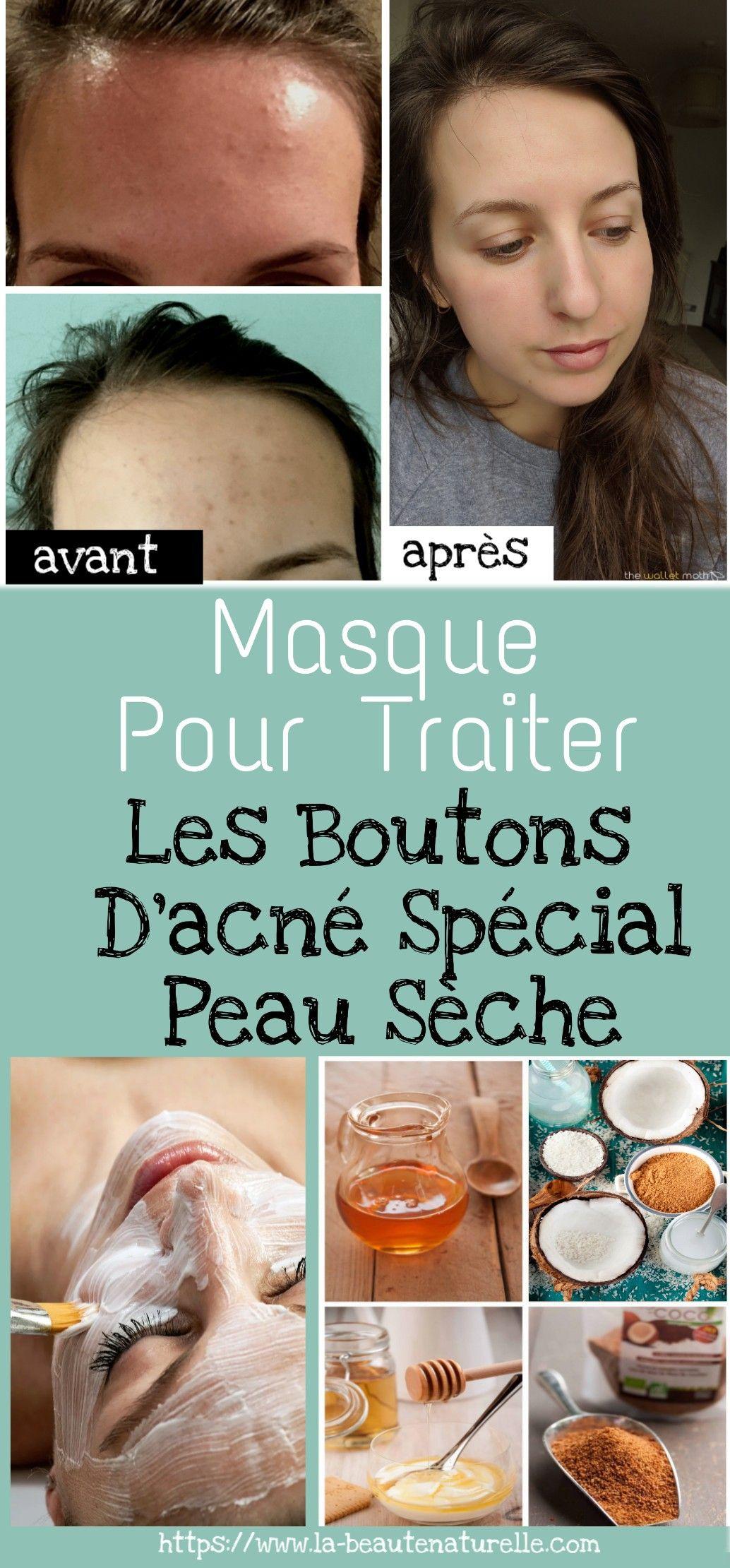 fournir beaucoup de Nouvelle liste modèle unique Masque pour traiter les boutons d'acné spécial peau sèche ...