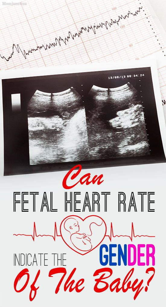 determining sex of baby by fetal heart rate in Bradford