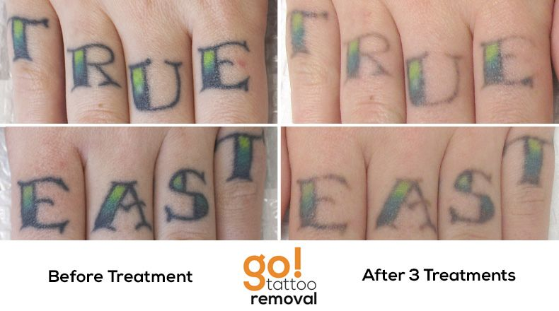 Removing some knuckles tattoos progressing along nicely for Tattoo removal in louisiana