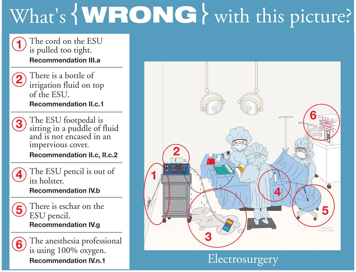 Electrosurgery Answers Whats wrong, Pictures, Nurse
