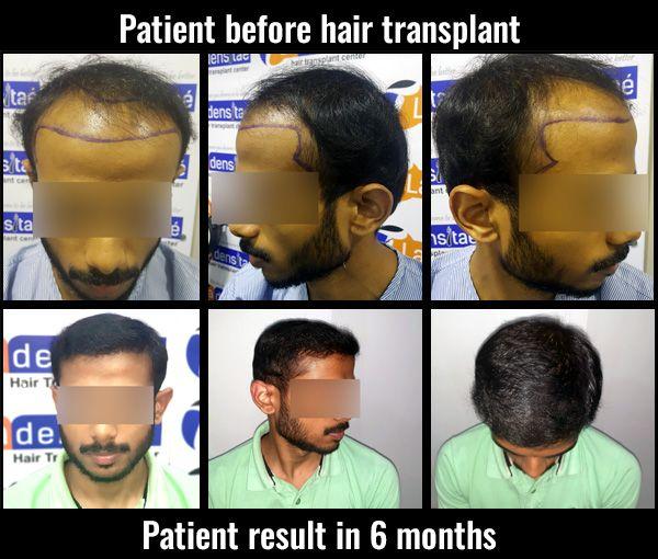 Best Hair Transplant in pune Gallery