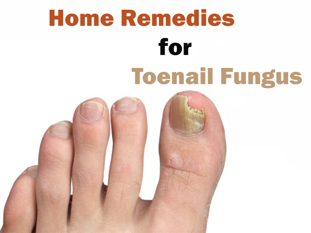 How to get rid of toe nail fungus? Best home remedies for toenail ...