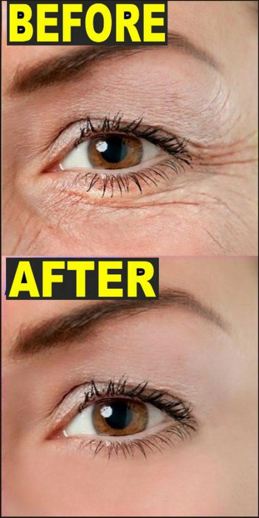 Homemade AntiAging Face Mask for Fine Lines & Wrinkles