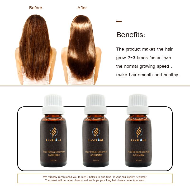 Chinese Medicine Sunburst Hair Growth Hair Regrowth Grow For Men And
