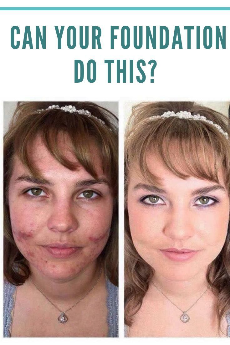 Cover up rosacea in 2020 Acne cover up, Younique