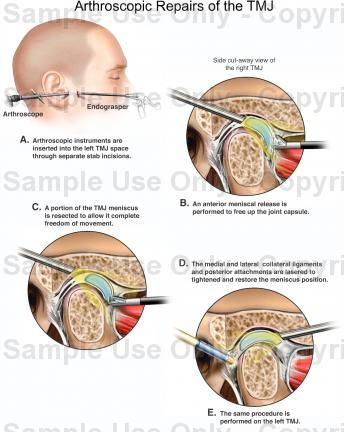 Pin On Oral Surgery