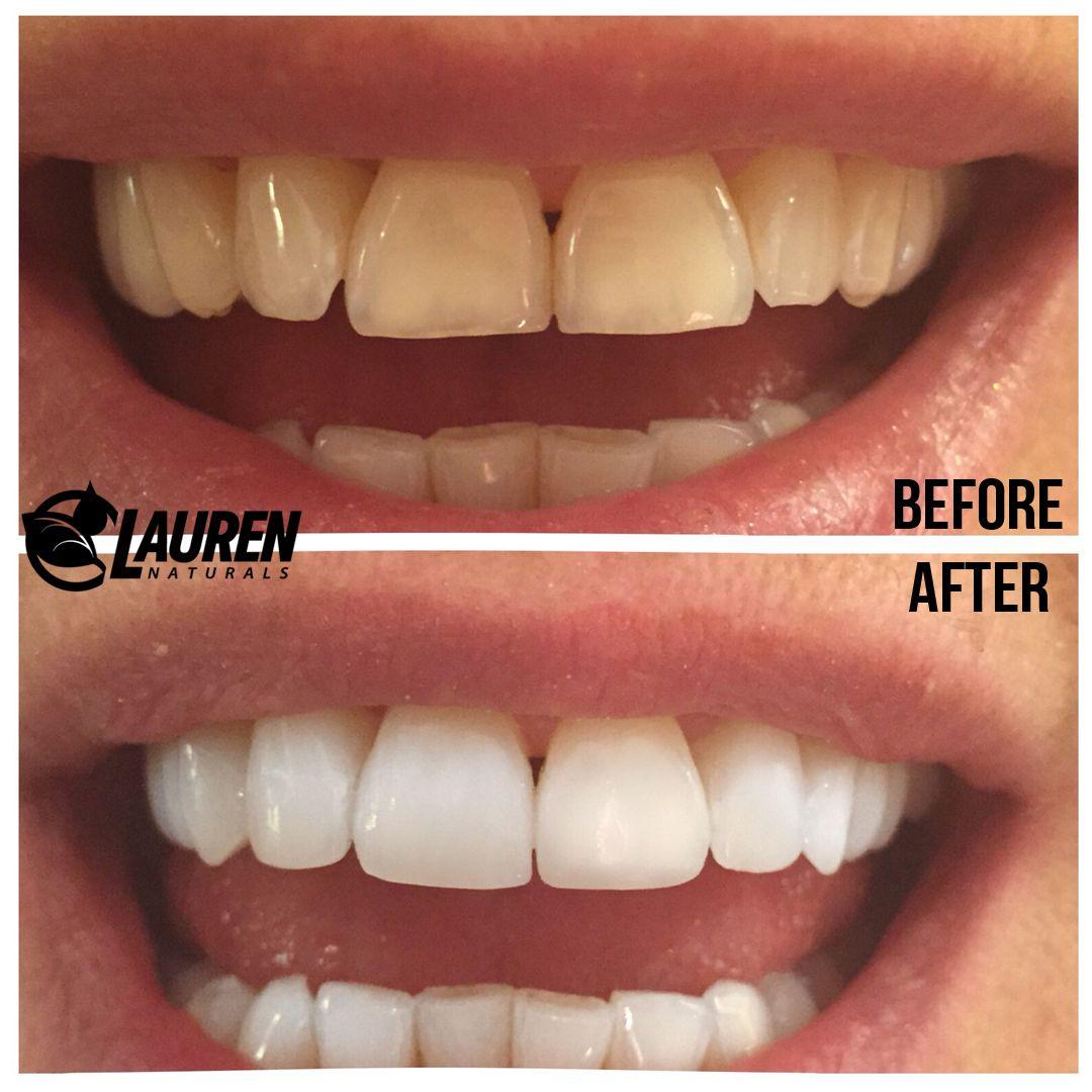 Colgate teeth whitening teeth whitening products pinterest teeth - Amazing Teeth Whitening Solution Http Getfreecharcoaltoothpaste Tumblr Com