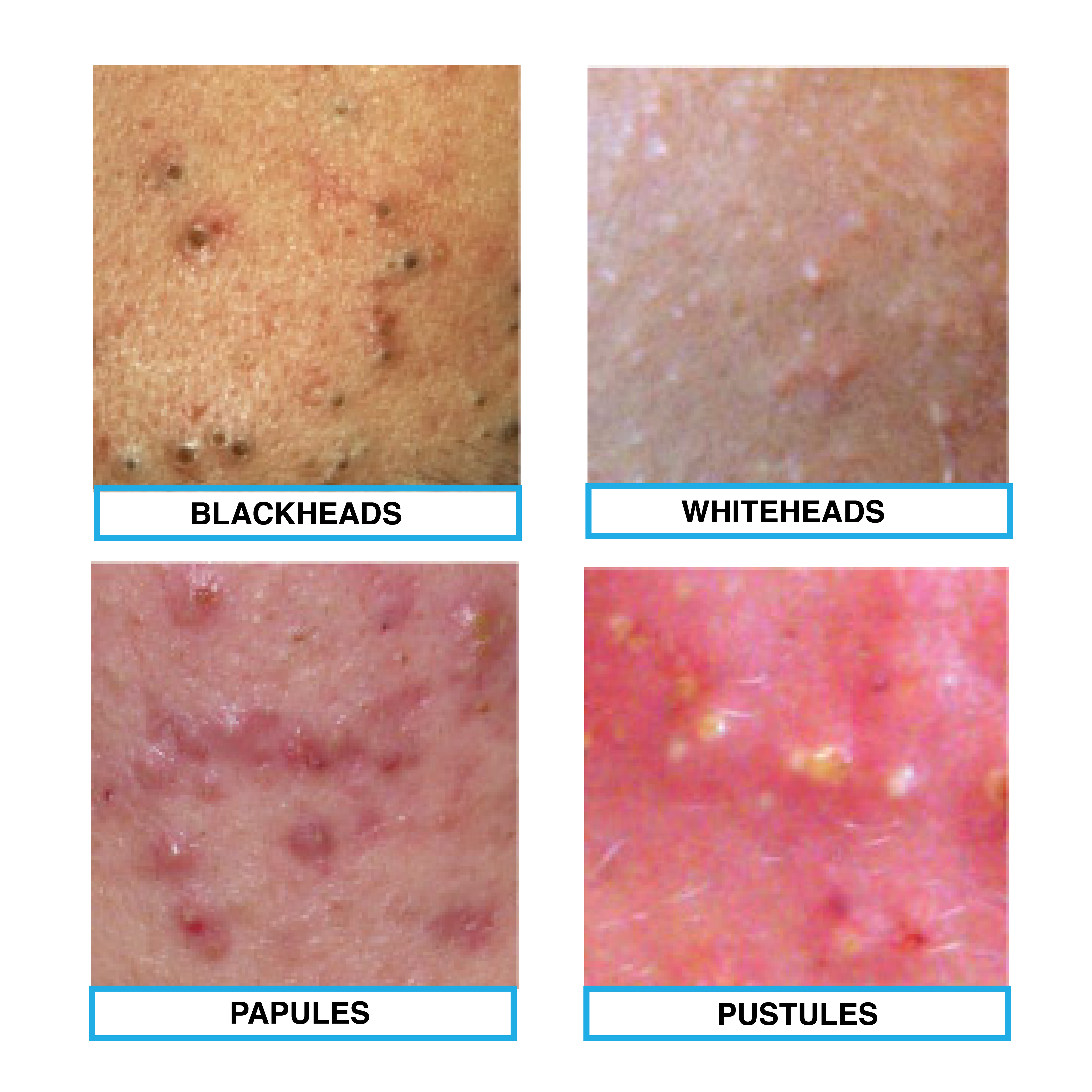 The Four Types Of Acne  Blackheads  Whiteheads  Papule And
