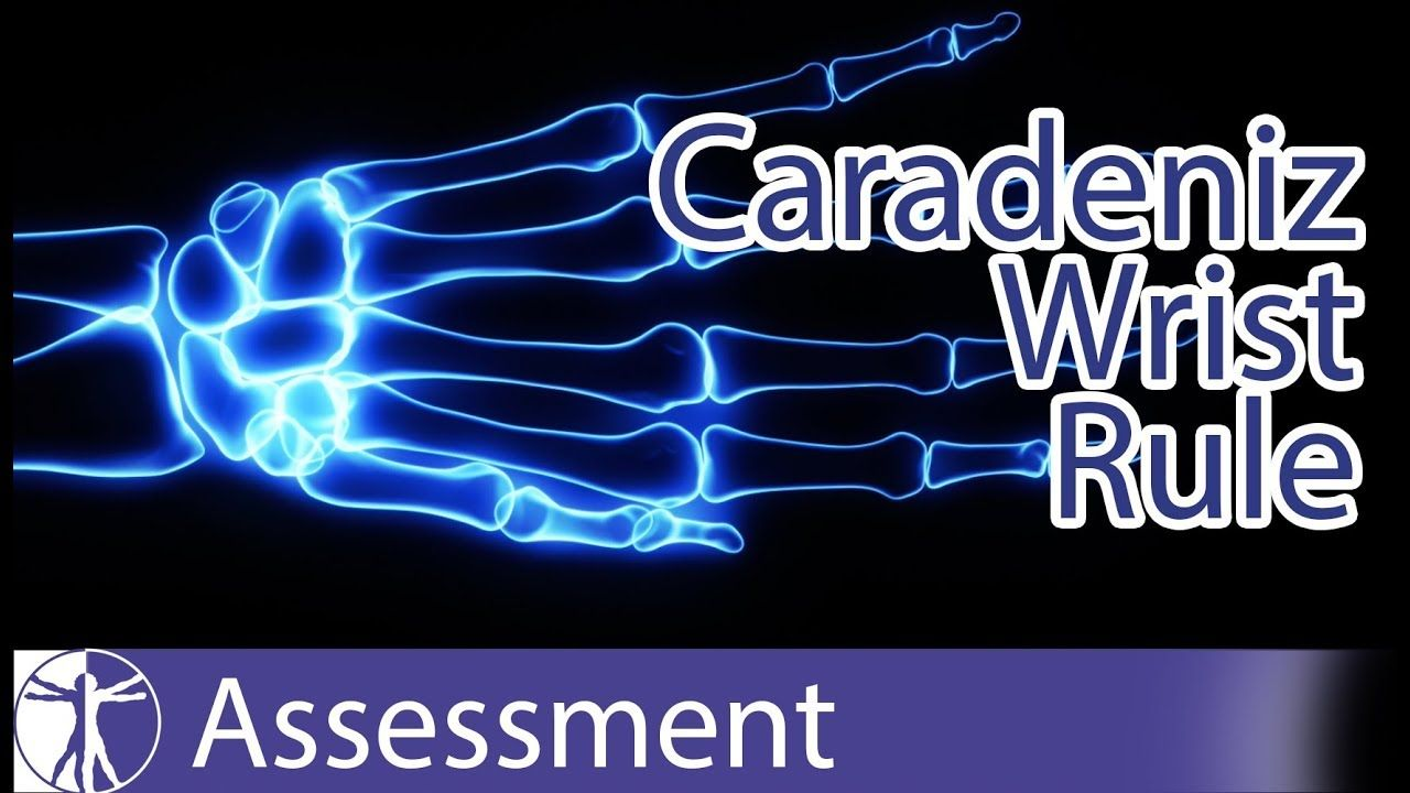 Caradeniz Wrist Rule Wrist Fractures YouTube Hand