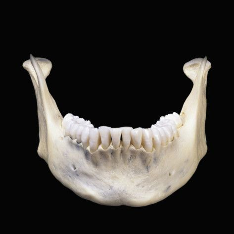 Human Lower Jaw Bone Or Mandible Is The Largest And Strongest Bone