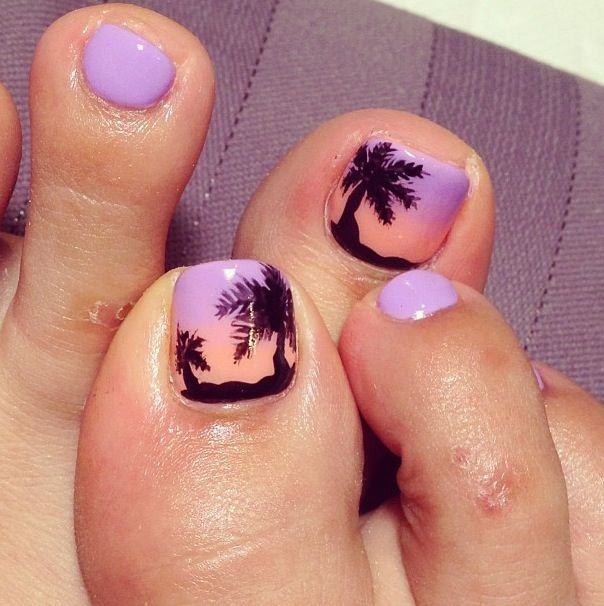 Vacation Toes! If you have a toenail fungus problem, come to ...