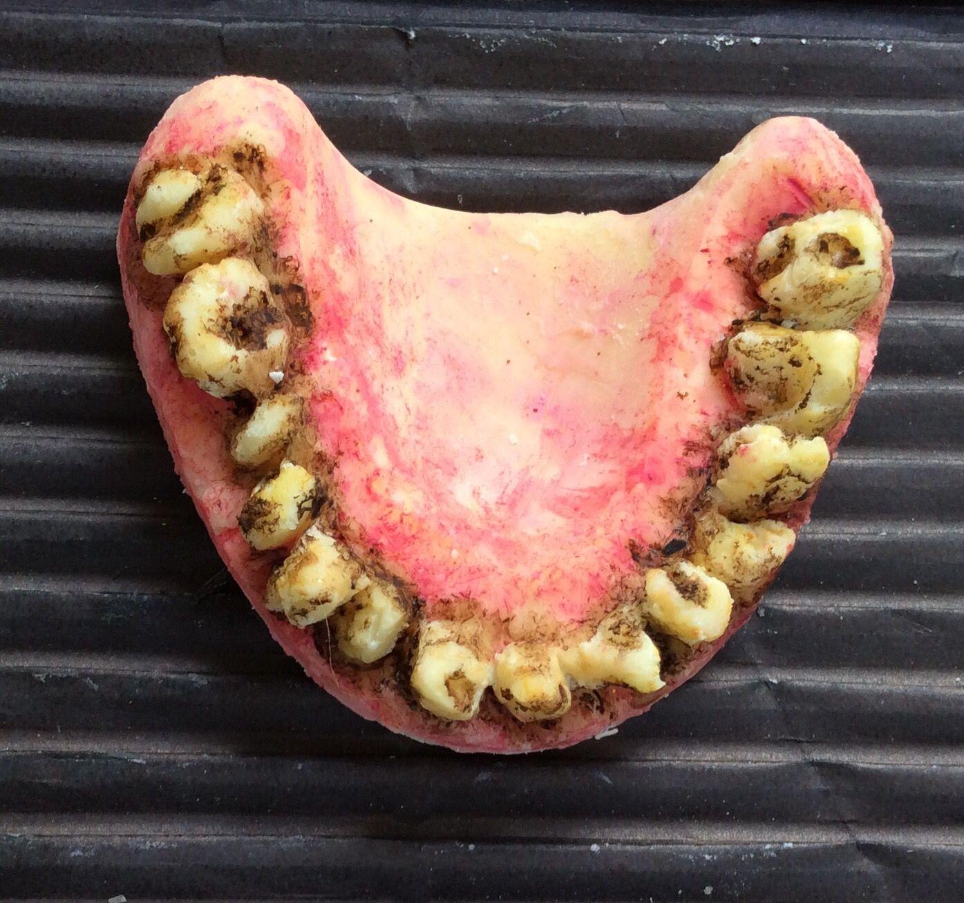 The 25+ best Teeth rotting ideas on Pinterest