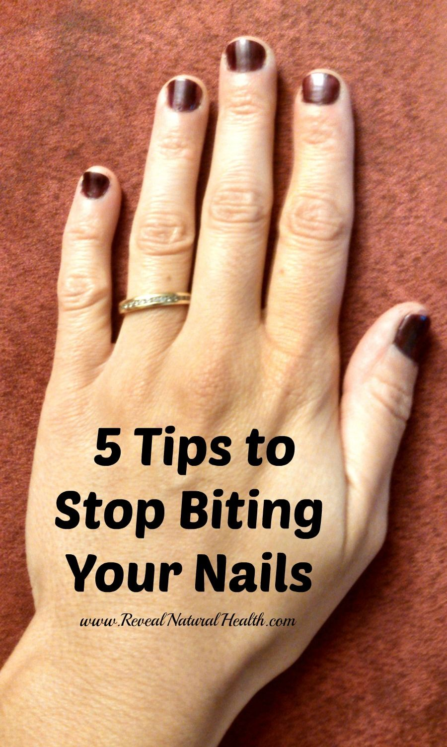 5 Tips to Stop Biting Your Nails | Pinterest | Natural health ...