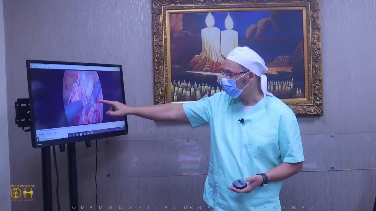 استئصال الوحش كيس درمويد من على المبيض شاهد شرح العملية بالكامل Television Electronic Products Flatscreen Tv