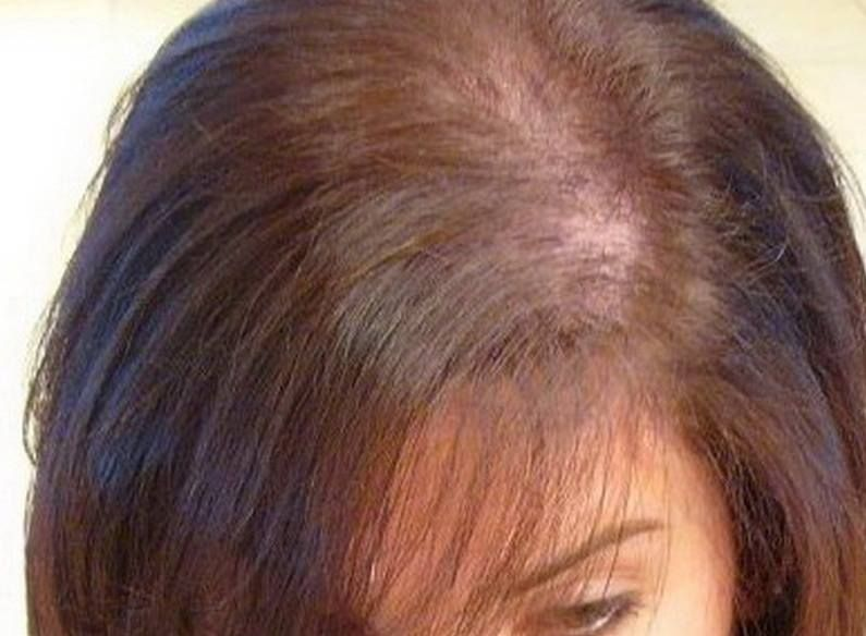 hair loss triggered by menopause: hair loss is a common symptom of, Skeleton
