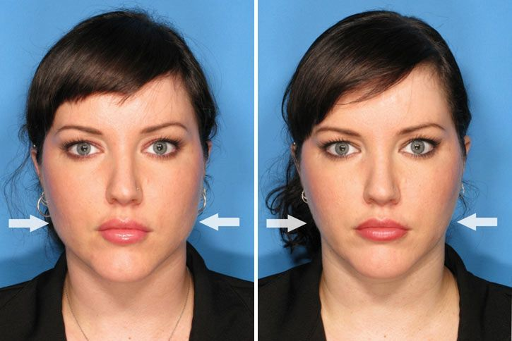 Botox For Face Slimming Before And After Photos Botox Face