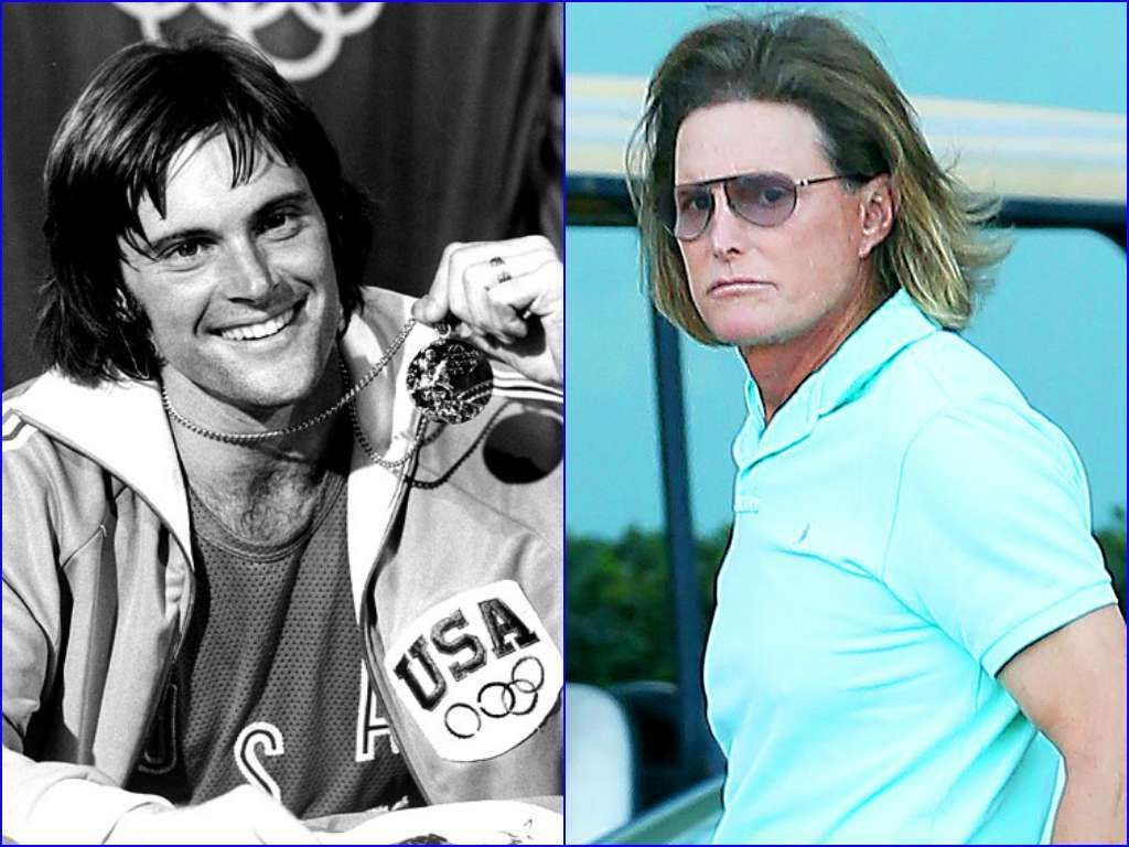 Bruce Jenner Celebrities Who Have Aged The Worst List Of Celebs Aging Badly